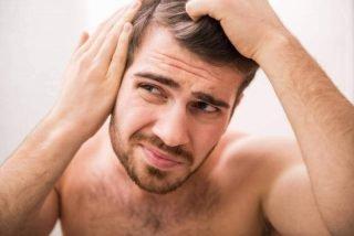 age and hair loss | longevity live