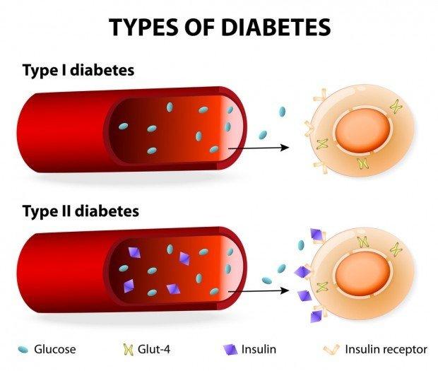 Metabolic Syndrome & Diabetes