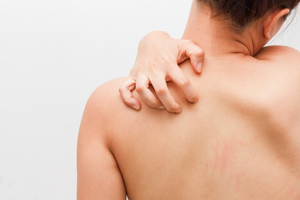 Recent Research Finds Link Between Psoriasis and Heart Disease