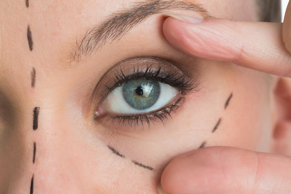New Anti-Aging Non-Surgical Technique For Eyelids