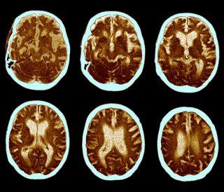 Multiple Sclerosis| Longevity LIVE