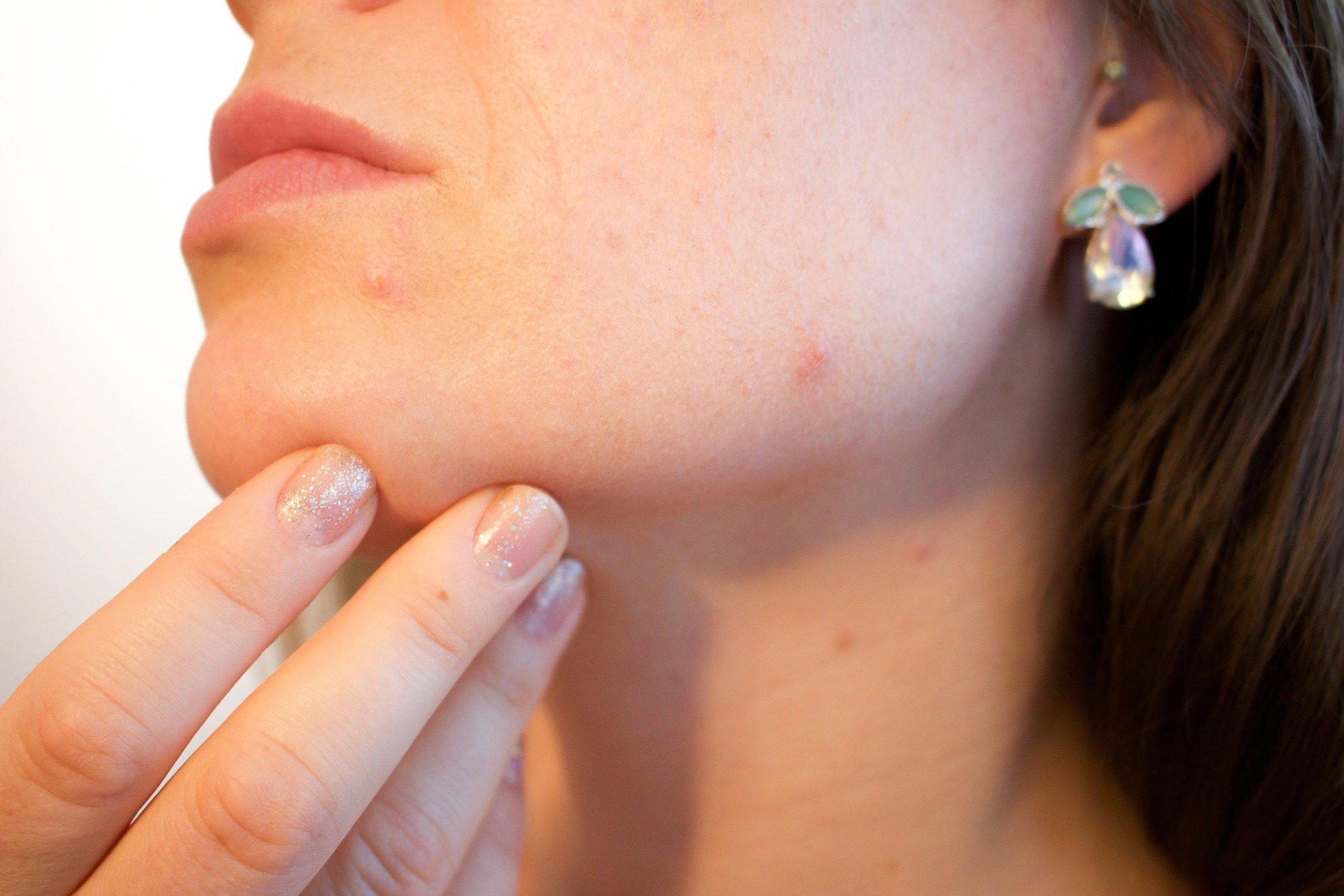 13 Things You Should Do When Your Acne Does Not Clear