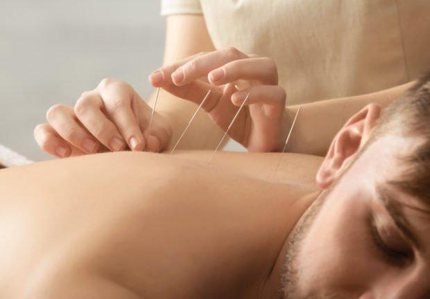 acupuncture   Longevity LIVE