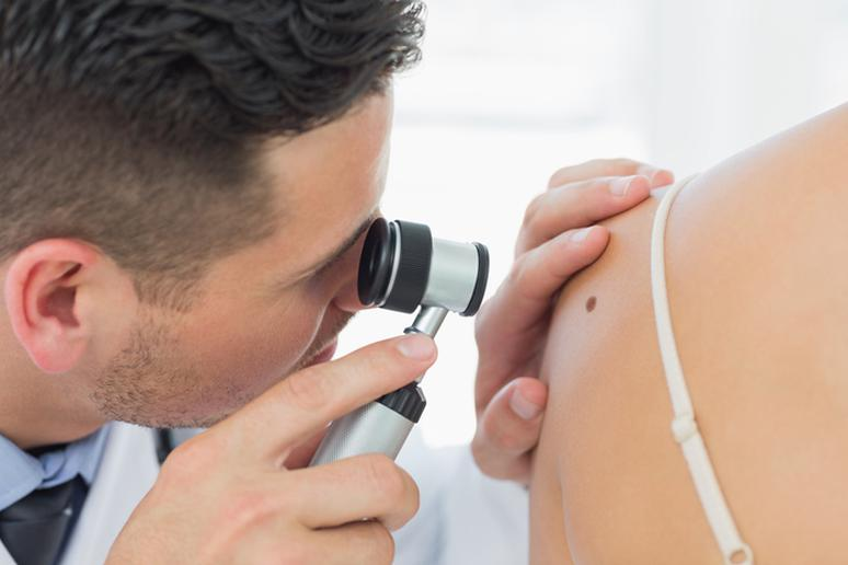 Preventing Skin Cancer: 6 Simple Tips to Follow