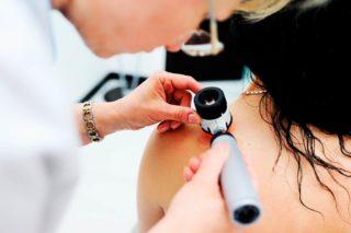skin cancer   Longevity LIVE