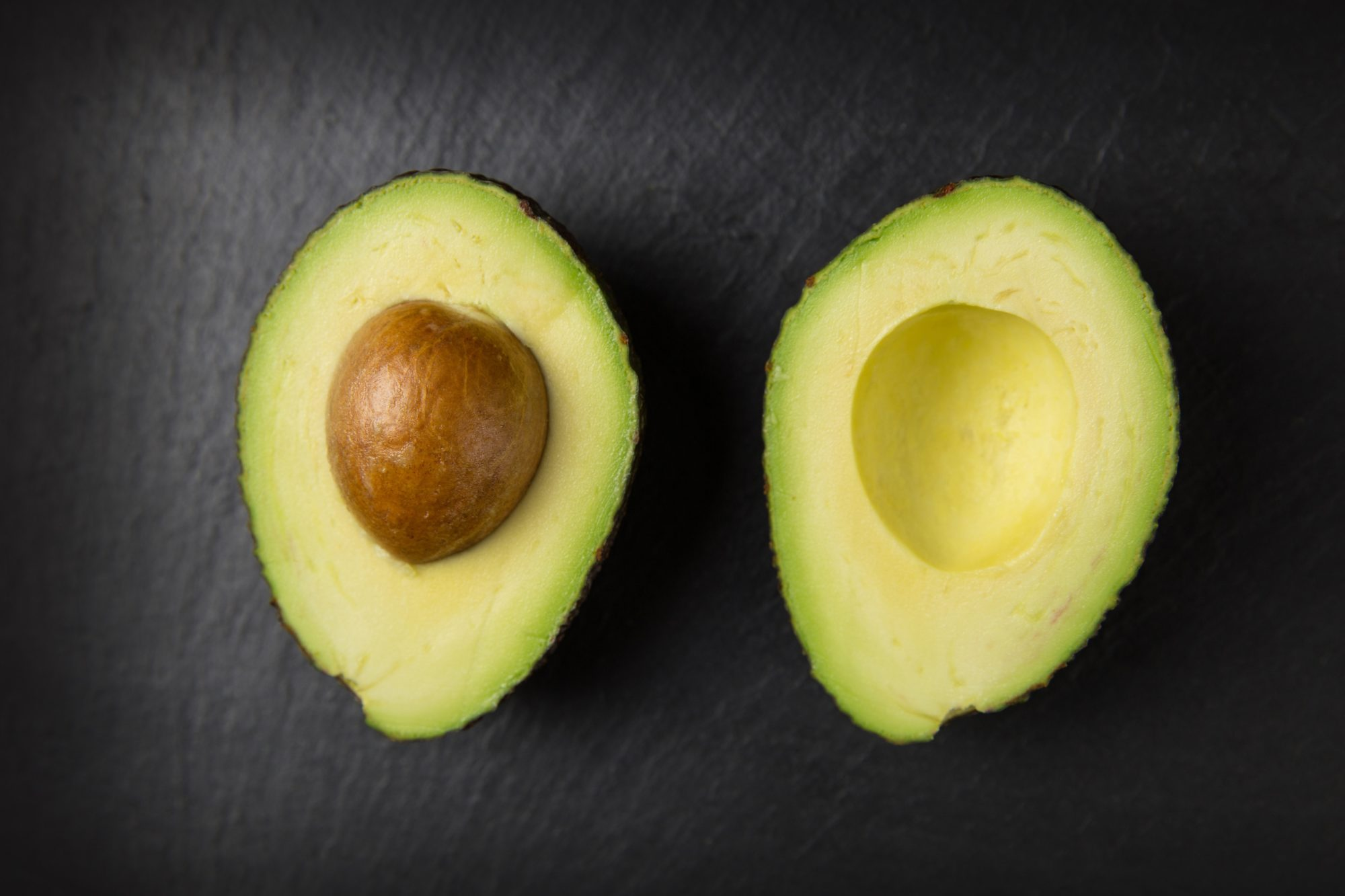Is it a 'GO' for avocados and gut health?