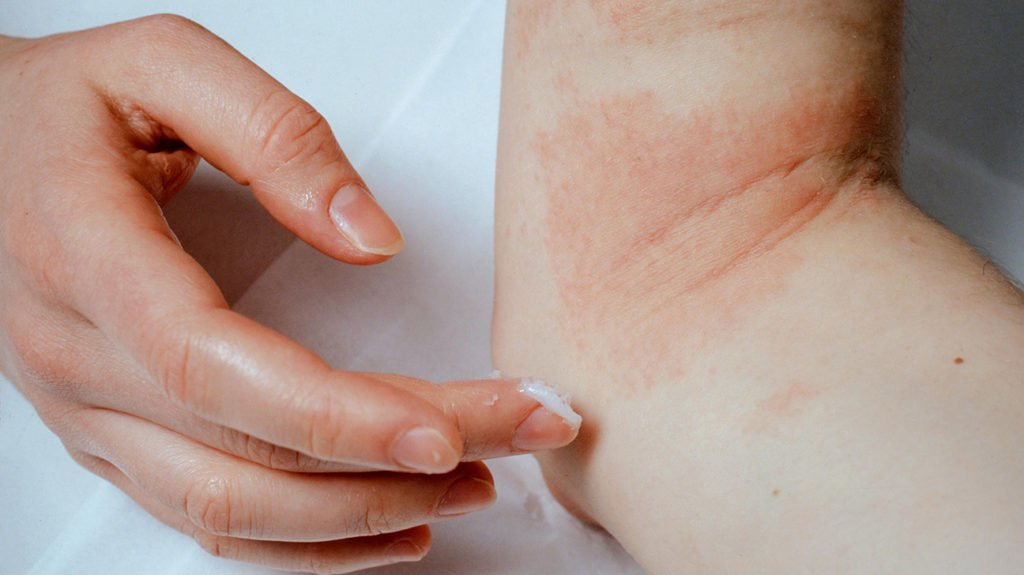 eczema | Longevity LIVE