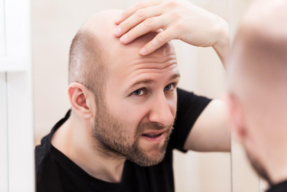 receding hairline   Longevity LIVE