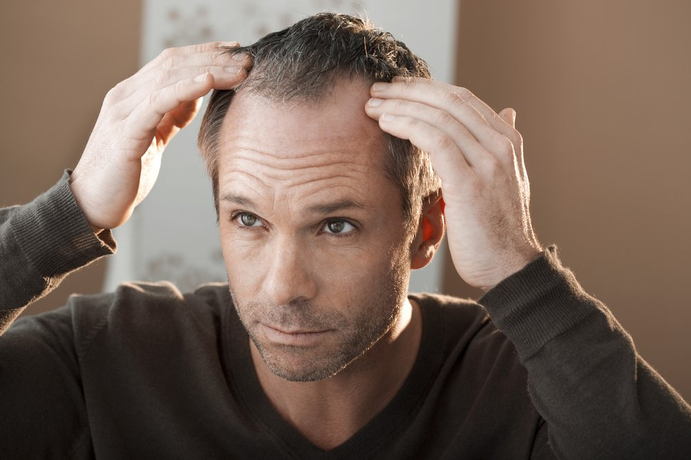 hair loss   Longevity LIVE