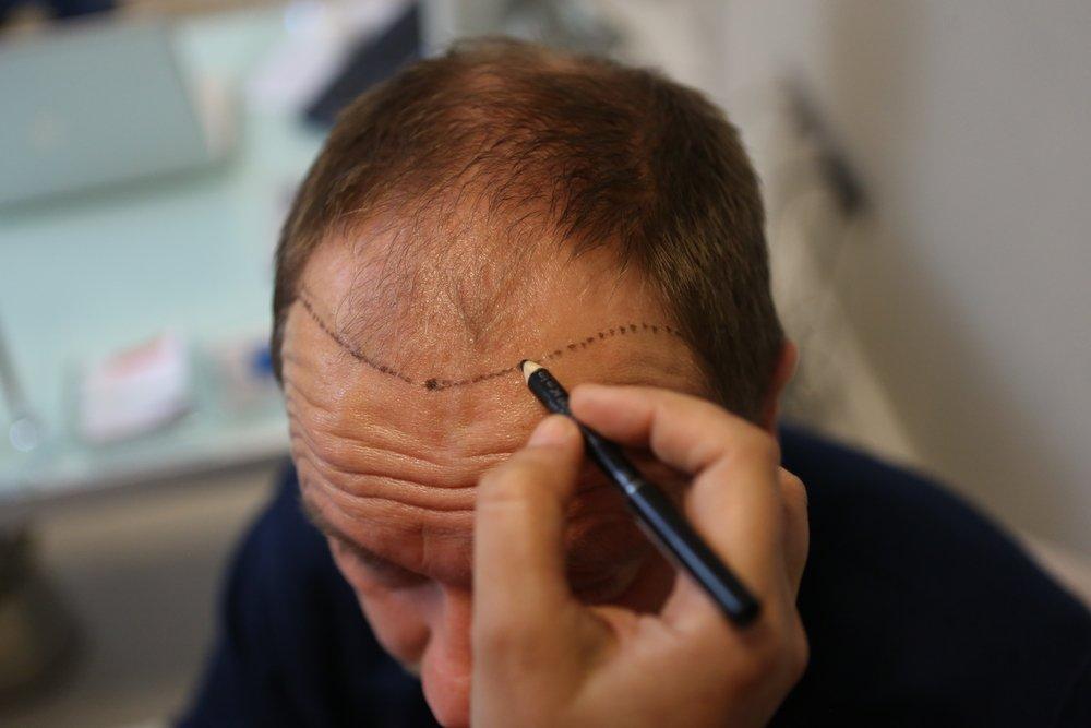 hair transplant   Longevity LIVE