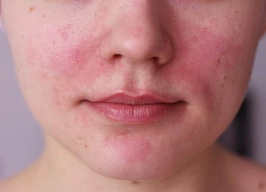 Rosacea: What is it and is it treatable?